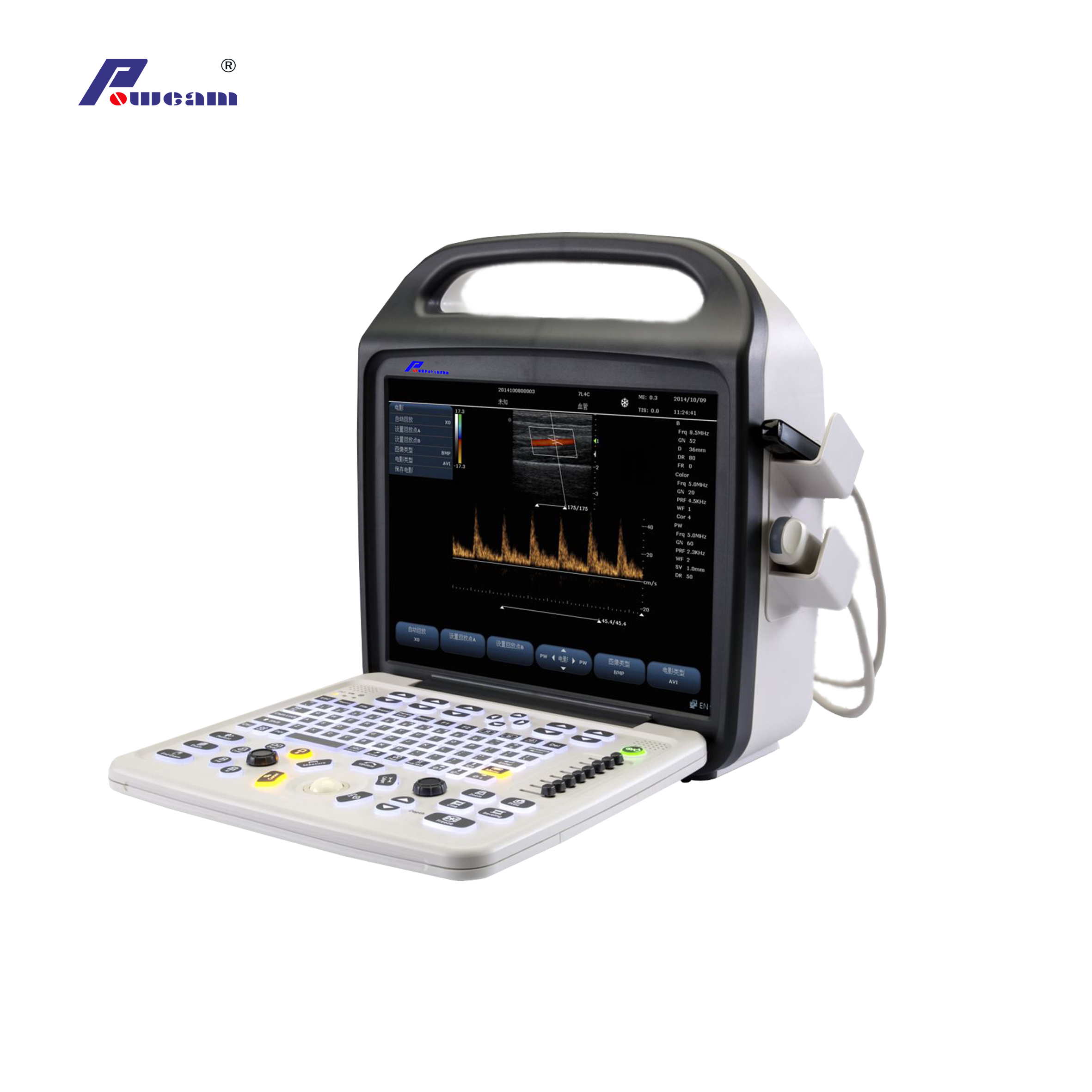Portable Ultrasound Color Doppler Ultrasound Scanner (C10)