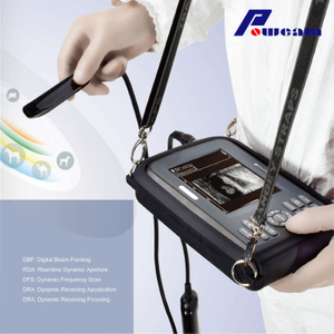 Hospital Handheld Ultrasound Scanner (whyb4000)
