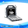 "Ce Approved Hospital 12.1"" LCD Digital Laptop Ultrasound (WHYC60P)"