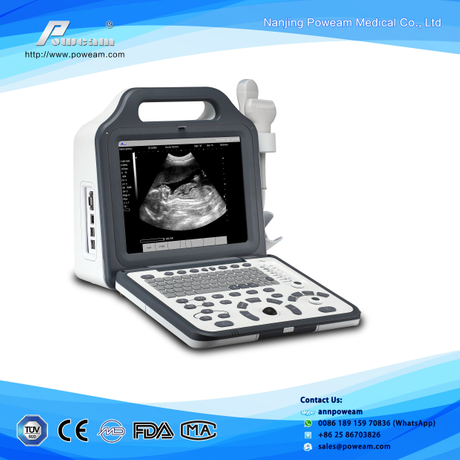 "Hospital 12.1"" LCD Digital Laptop Ultrasound (WHYC60P)"