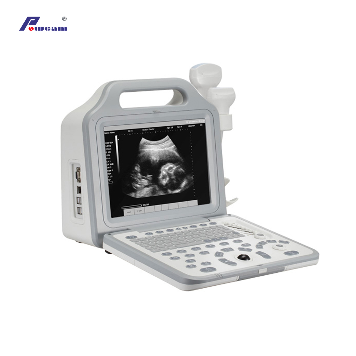 Digital Laptop Portable Ultrasound Scanner with LCD Display (WHYC50P)